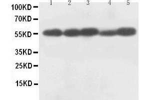 Western Blotting (WB) image for anti-Caspase 8, Apoptosis-Related Cysteine Peptidase (CASP8) (AA 240-259), (Middle Region) antibody (ABIN3044361)