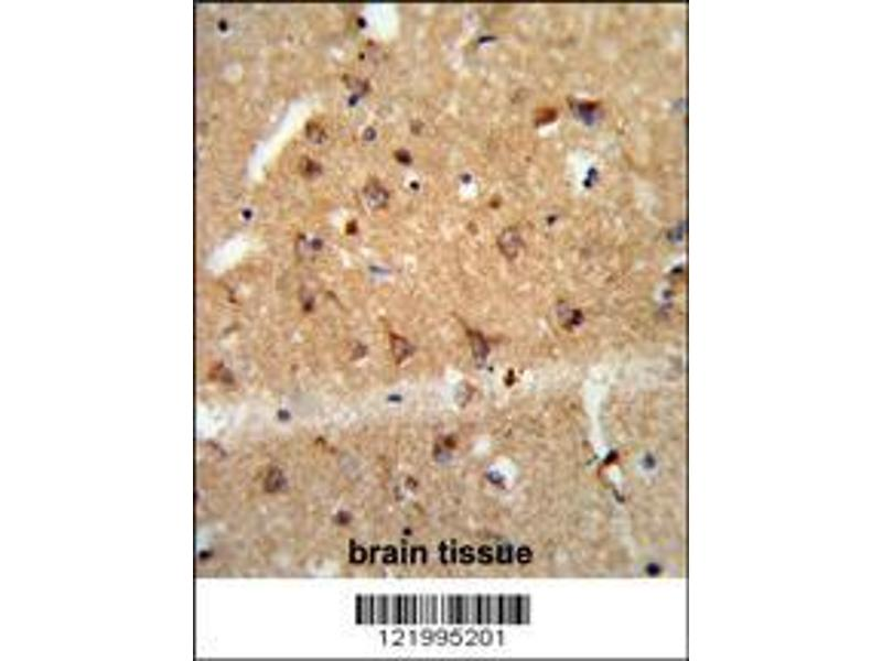 Immunohistochemistry (IHC) image for anti-Glial Cell Line Derived Neurotrophic Factor (GDNF) (AA 8-36), (N-Term) antibody (ABIN652624)