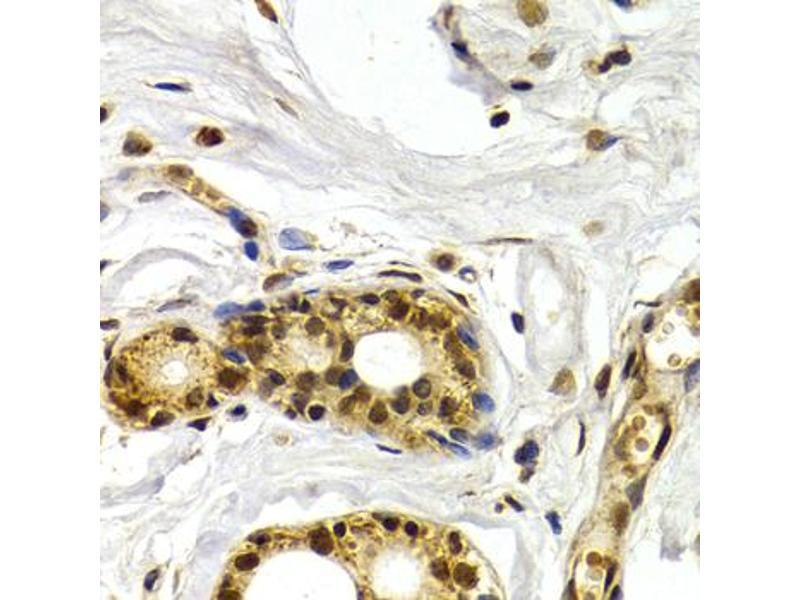 Immunohistochemistry (Paraffin-embedded Sections) (IHC (p)) image for anti-Activating Transcription Factor 2 (ATF2) antibody (ABIN2973581)