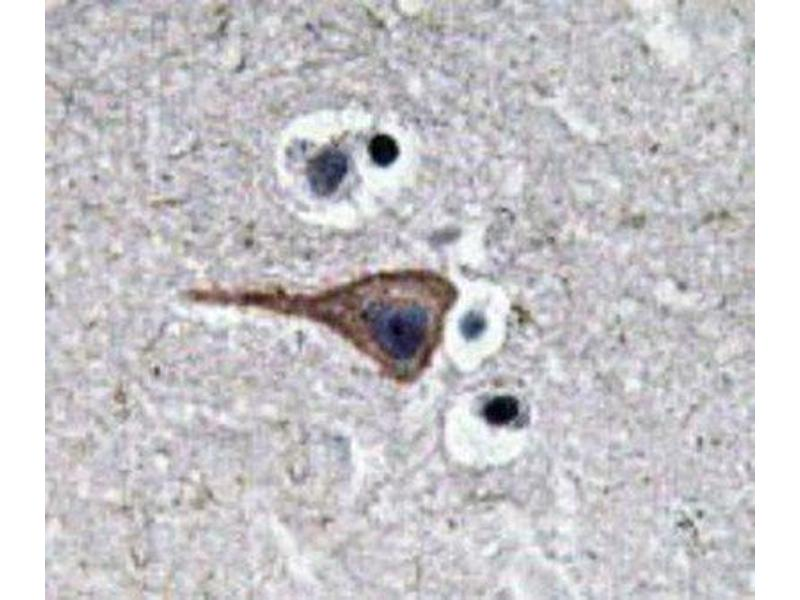Immunohistochemistry (IHC) image for anti-Epidermal Growth Factor (EGF) (Internal Region) antibody (ABIN446990)