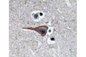Immunohistochemistry (IHC) image for anti-EGF antibody (Epidermal Growth Factor) (Internal Region) (ABIN446990)