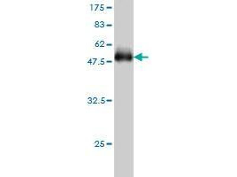 Western Blotting (WB) image for anti-Acyl-CoA Thioesterase 9 (Acot9) (AA 1-213) antibody (ABIN394540)