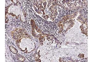 Immunohistochemistry (Paraffin-embedded Sections) (IHC (p)) image for anti-tyrosine Kinase with Immunoglobulin-Like and EGF-Like Domains 1 (TIE1) (AA 1-760) antibody (ABIN1996997)
