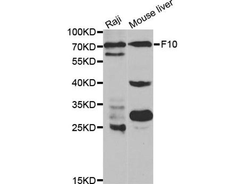Image no. 1 for anti-Coagulation Factor X (F10) antibody (ABIN6568380)