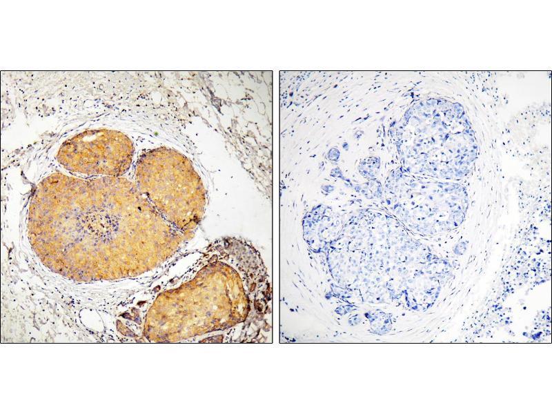Image no. 1 for anti-Fas (TNFRSF6)-Associated Via Death Domain (FADD) (pSer191) antibody (ABIN1576424)