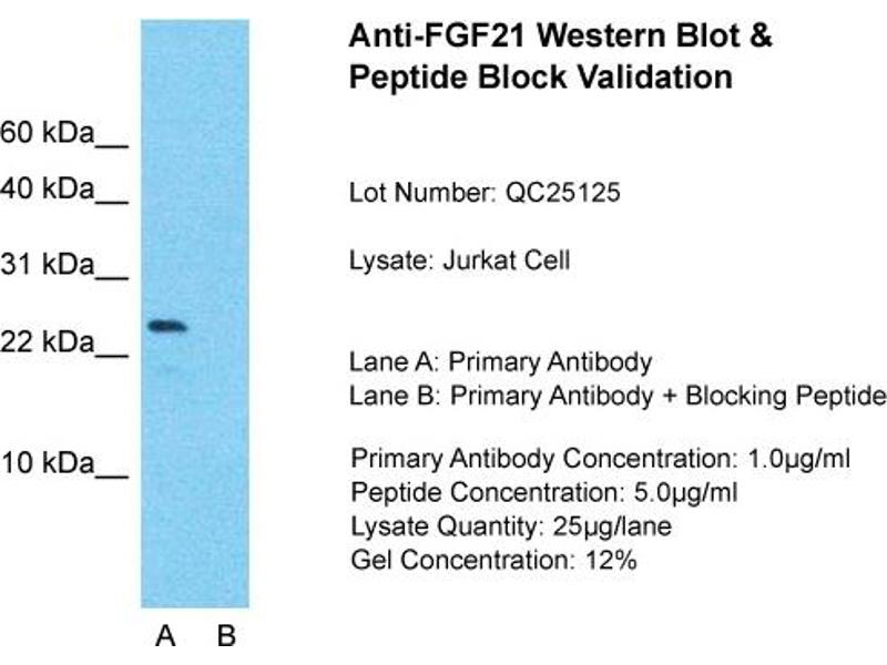 Western Blotting (WB) image for anti-FGF21 antibody (Fibroblast Growth Factor 21) (N-Term) (ABIN2786170)