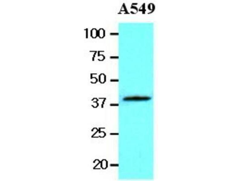 Western Blotting (WB) image for anti-Wingless-Type MMTV Integration Site Family, Member 3A (WNT3A) (AA 19-352) antibody (ABIN449669)