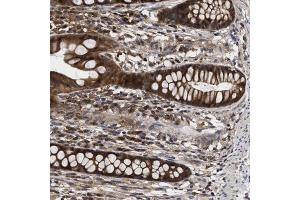 Immunohistochemistry (IHC) image for anti-CAP-GLY Domain Containing Linker Protein 2 (CLIP2) antibody (ABIN4301707)