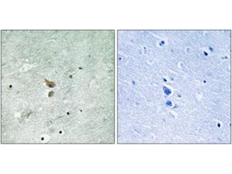 Immunohistochemistry (IHC) image for anti-RIPK2 antibody (Receptor-Interacting Serine-threonine Kinase 2) (pSer176) (ABIN1532078)