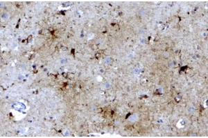Image no. 3 for anti-Ferritin, Light Polypeptide (FTL) (C-Term) antibody (ABIN334402)