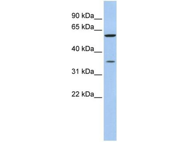 Western Blotting (WB) image for anti-Aldo-Keto Reductase Family 1, Member B1 (Aldose Reductase) (AKR1B1) (N-Term) antibody (ABIN2783262)