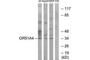 Image no. 1 for anti-Olfactory Receptor, Family 51, Subfamily A, Member 4 (OR51A4) (AA 200-249) antibody (ABIN1536059)