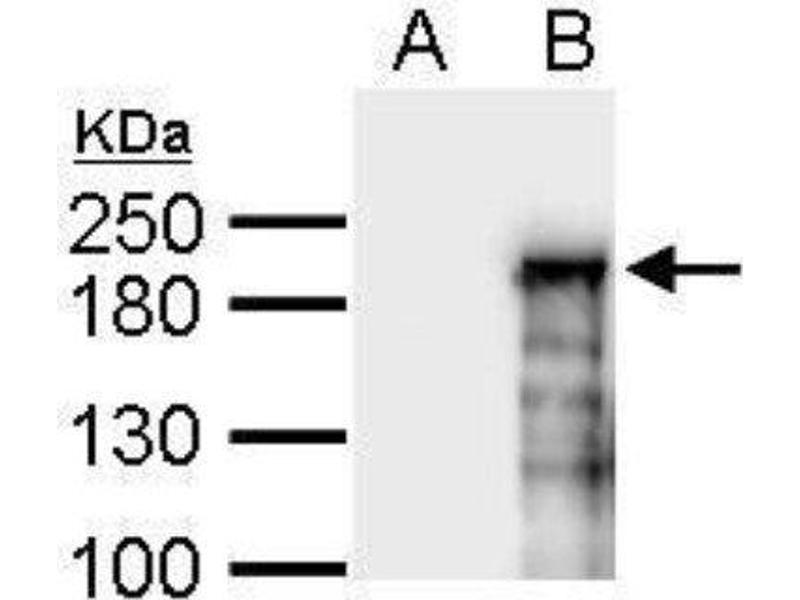 Western Blotting (WB) image for anti-Additional Sex Combs Like 1 (Drosophila) (ASXL1) (N-Term) antibody (ABIN4281933)