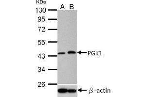 Western Blotting (WB) image for anti-Phosphoglycerate Kinase 1 (PGK1) (Center) antibody (ABIN4345073)