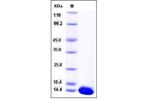 Image no. 1 for S100 Calcium Binding Protein A5 (S100A5) (AA 1-93) protein (His tag) (ABIN2007786)