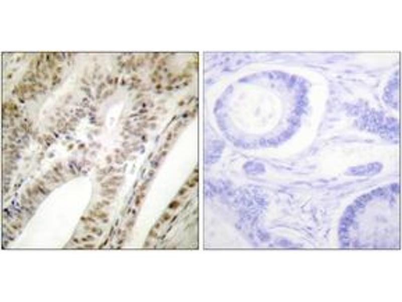 Immunohistochemistry (IHC) image for anti-PML antibody (Promyelocytic Leukemia) (ABIN1533381)