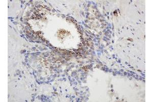 Image no. 2 for anti-Glyceraldehyde-3-Phosphate Dehydrogenase, Spermatogenic (GAPDHS) antibody (ABIN1498375)