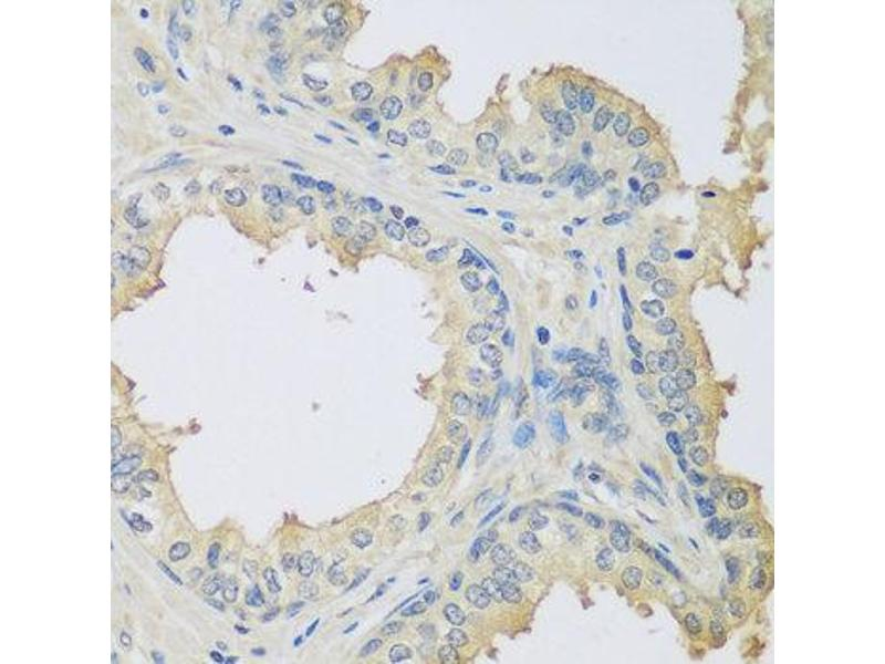 Immunohistochemistry (IHC) image for anti-Complement Component 3 (C3) antibody (ABIN2561506)