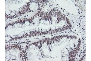 Image no. 1 for anti-SEC14 and Spectrin Domains 1 (SESTD1) antibody (ABIN1501066)