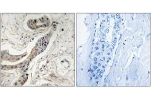 Immunohistochemistry (IHC) image for anti-BCL2L1 antibody (BCL2-Like 1) (pThr115) (ABIN1532107)