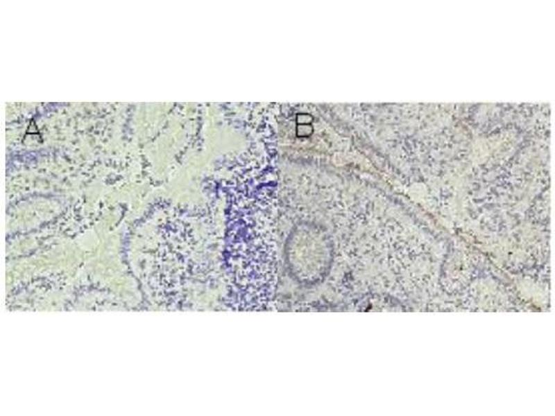 Immunohistochemistry (IHC) image for anti-Carcinoembryonic Antigen-Related Cell Adhesion Molecule 1 (Biliary Glycoprotein) (CEACAM1) antibody (ABIN108725)