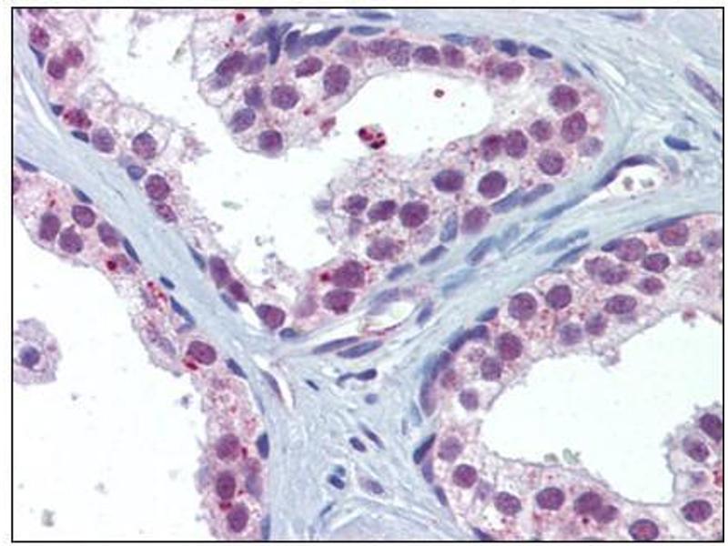 Immunohistochemistry (Paraffin-embedded Sections) (IHC (p)) image for anti-V-Akt Murine Thymoma Viral Oncogene Homolog 1 (AKT1) antibody (ABIN615269)