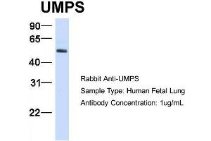 Image no. 1 for anti-Uridine Monophosphate Synthetase (UMPS) (C-Term) antibody (ABIN2783243)