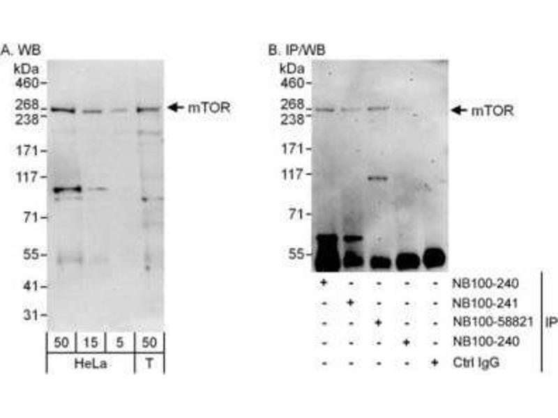 Western Blotting (WB) image for anti-Mechanistic Target of Rapamycin (serine/threonine Kinase) (FRAP1) (AA 200-250) antibody (ABIN151707)