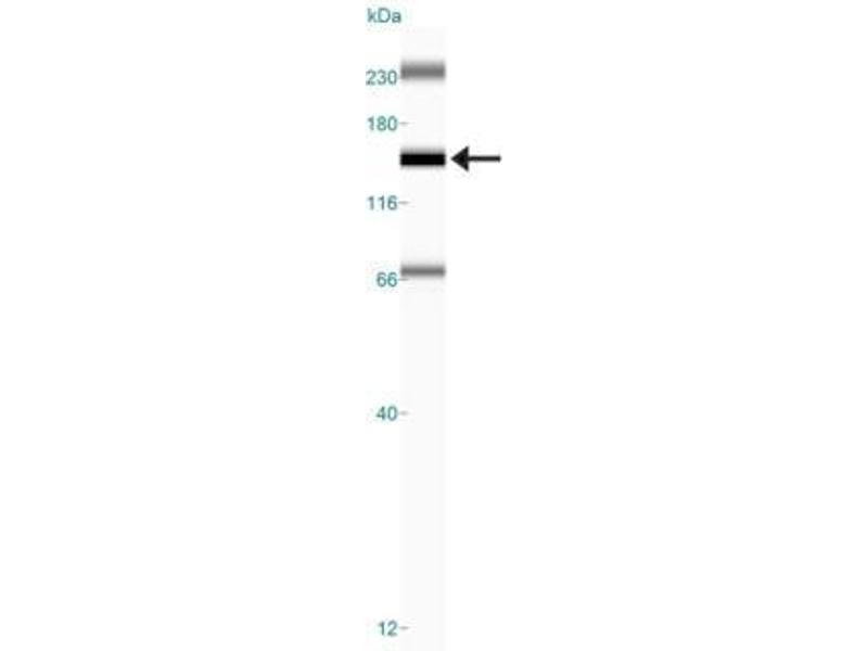 Simple Western (SimWes) image for anti-FANCD2 antibody (Fanconi Anemia, Complementation Group D2) (N-Term) (ABIN250523)