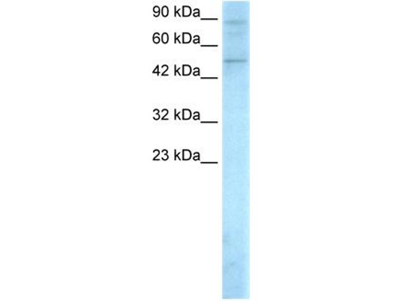 Western Blotting (WB) image for anti-SMAD, Mothers Against DPP Homolog 5 (SMAD5) (Middle Region) antibody (ABIN2779414)