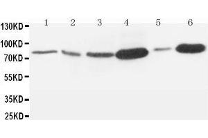 Image no. 1 for anti-Matrix Metallopeptidase 9 (Gelatinase B, 92kDa Gelatinase, 92kDa Type IV Collagenase) (MMP9) (AA 689-705), (C-Term) antibody (ABIN3044382)