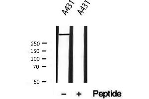 Image no. 3 for anti-Ryanodine Receptor 2 (Cardiac) (RYR2) (pSer2808) antibody (ABIN6270320)