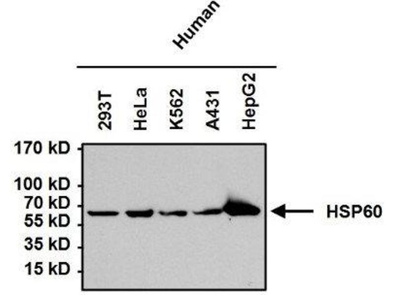 Western Blotting (WB) image for anti-Heat Shock 60kDa Protein 1 (Chaperonin) (HSPD1) antibody (ABIN4320164)