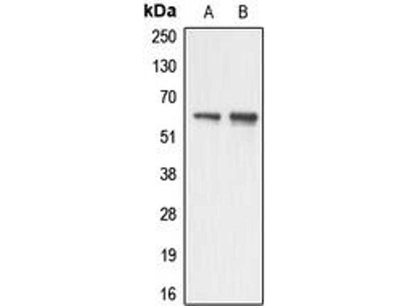 Western Blotting (WB) image for anti-Apoptosis Antagonizing Transcription Factor (AATF) (N-Term) antibody (ABIN2707295)