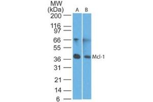 Western Blotting (WB) image for anti-MCL-1 antibody (Induced Myeloid Leukemia Cell Differentiation Protein Mcl-1) (ABIN4333160)
