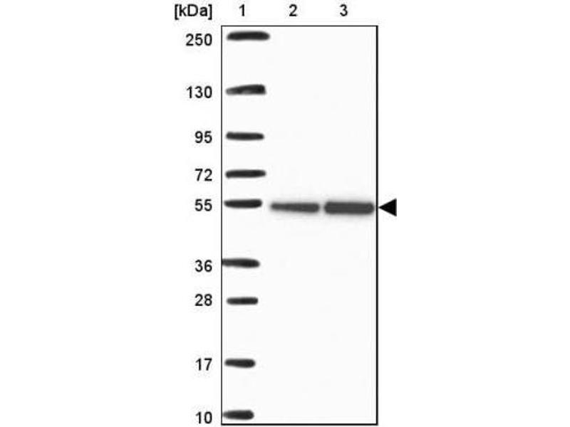 Immunohistochemistry (IHC) image for anti-Retinoblastoma Binding Protein 7 (RBBP7) antibody (ABIN4349489)