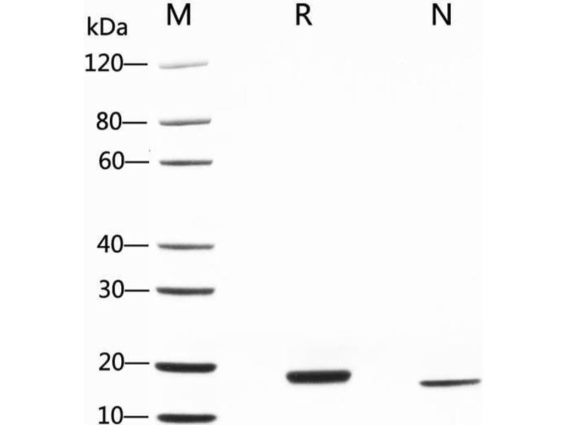 SDS-PAGE (SDS) image for Leukemia Inhibitory Factor (LIF) (AA 23-202) (Active) protein (ABIN2018195)