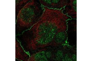 Immunofluorescence (IF) image for anti-Frizzled Family Receptor 2 (FZD2) antibody (ABIN4312586)