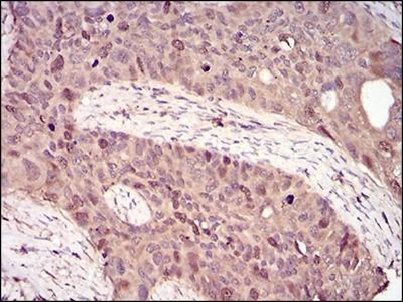 Immunohistochemistry (IHC) image for anti-Cyclin A Antikörper (Cyclin A2) (ABIN4265736)