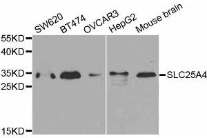 Image no. 2 for anti-Solute Carrier Family 25 (Mitochondrial Carrier, Adenine Nucleotide Translocator), Member 4 (SLC25A4) antibody (ABIN3022646)