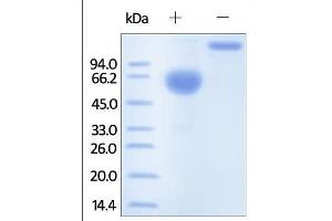Image no. 1 for Protein C Receptor, Endothelial (PROCR) (AA 18-209) protein (Fc Tag) (ABIN2181665)