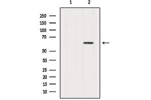 Image no. 5 for anti-Sequestosome 1 (SQSTM1) antibody (ABIN6263985)