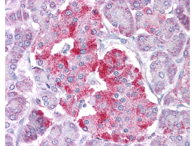 Immunohistochemistry (IHC) image for anti-Signal Transducer and Activator of Transcription 1, 91kDa (STAT1) (N-Term) antibody (ABIN604670)