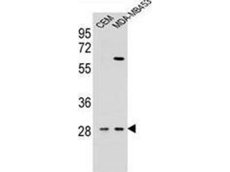 Western Blotting (WB) image for anti-Interleukin 12b (IL12B) (AA 271-298), (C-Term) antibody (ABIN952920)