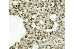 Image no. 1 for anti-Signal Transducer and Activator of Transcription 1, 91kDa (STAT1) (pSer727) antibody (ABIN6673854)