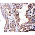 anti-SMAD5 antibody (SMAD, Mothers Against DPP Homolog 5) (Middle Region)