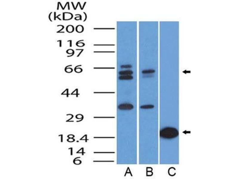Western Blotting (WB) image for anti-Forkhead Box O1 (FOXO1) antibody (ABIN4312371)