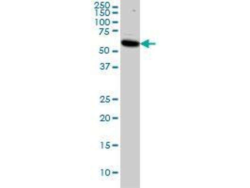 Western Blotting (WB) image for anti-V-Akt Murine Thymoma Viral Oncogene Homolog 1 (AKT1) (AA 1-481) antibody (ABIN393423)
