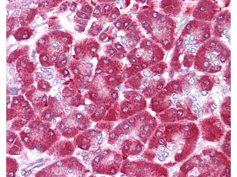 Immunohistochemistry (IHC) image for anti-Non-Metastatic Cells 1, Protein (NM23A) Expressed in (NME1) (N-Term) antibody (ABIN2792090)