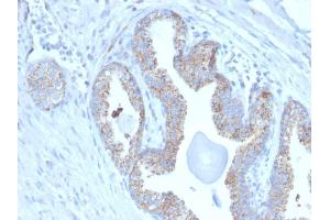 Image no. 3 for anti-Prostate Transmembrane Protein, Androgen Induced 1 (PMEPA1) antibody (ABIN6940418)